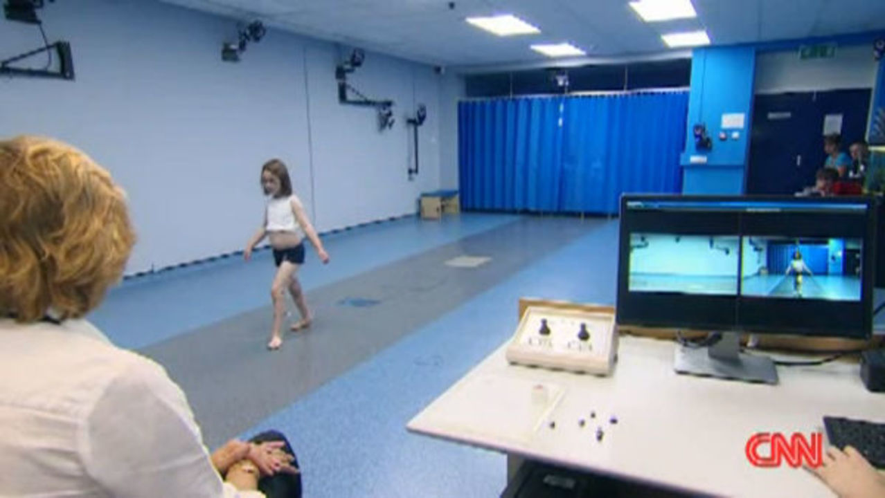 Movie motion capture technology being used in the healthcare field